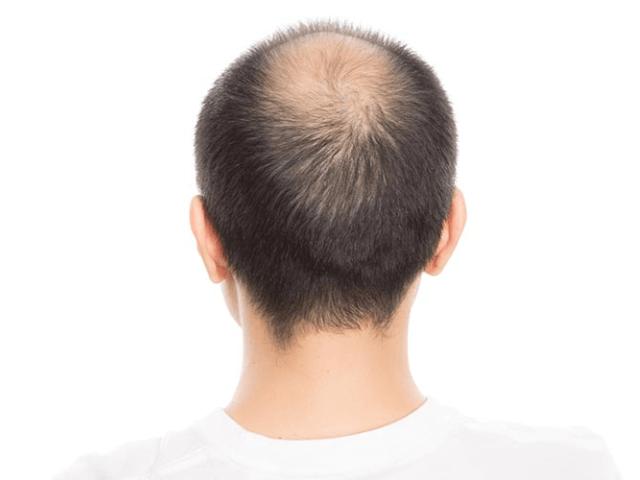 頭頂部から後頭部にかけて毛がない男性