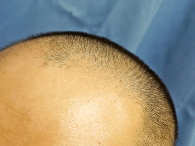 額に髪の毛がない男性